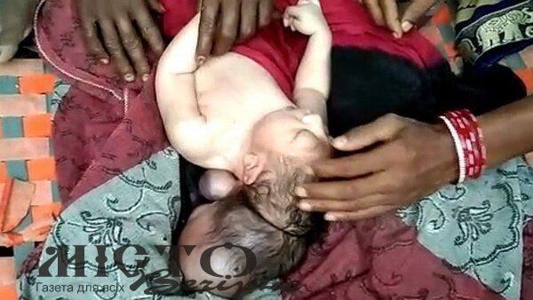 В Індії народилася дитина з трьома головами