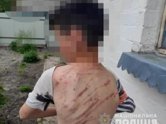 У селі Володимир-Волинського району вітчим побив 13-річного пасинка