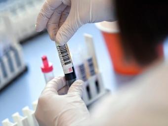 Володимир-Волинському та районі майже півтори тисячі людей захворіло на COVID-19