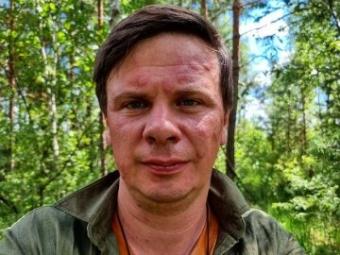 На Волині Комарова покусали комарі